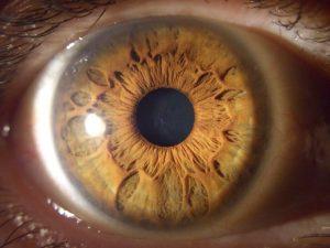 muestra cuarta de un iris