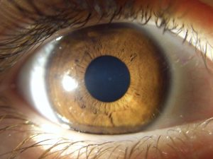 muestra segunda de un iris