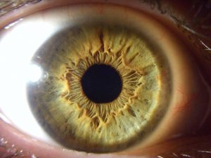 muestra tercera de un iris